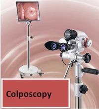 colposcope2
